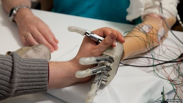 Feeling-Restoring Prosthetic Hands