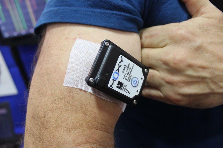 Blood Oxygen Sensors