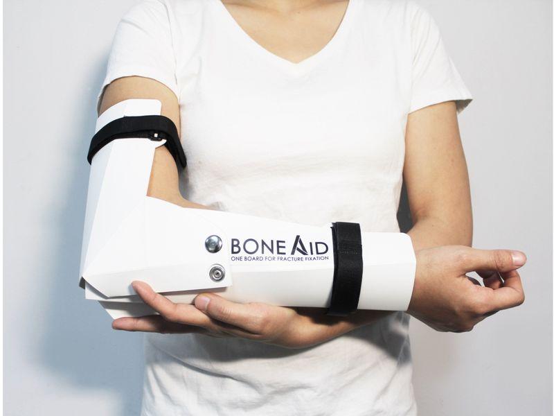 Flat-Pack Bone Casts