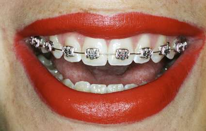 Braces In Mouth 121