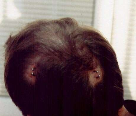 Brain Piercings