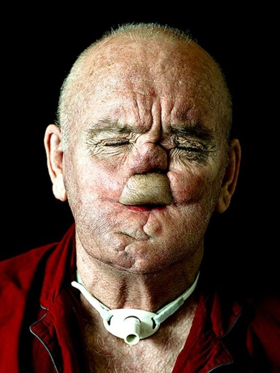Humanizing Disfigured Portraits