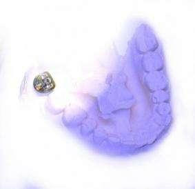 Drug Dispensing Dental Prothesis