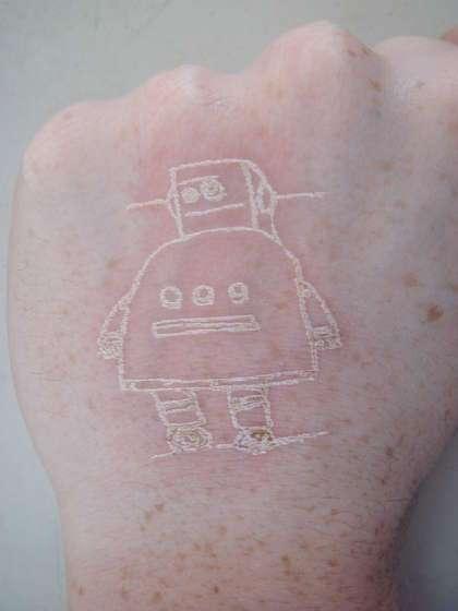 Laser-Etched Tattoos