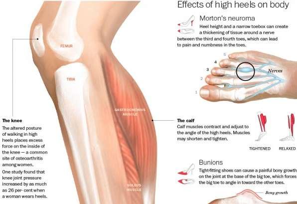 Hurtful High Heel Infographics
