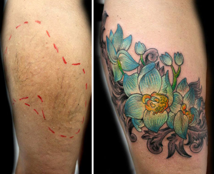 Scar-Covering Tattoos