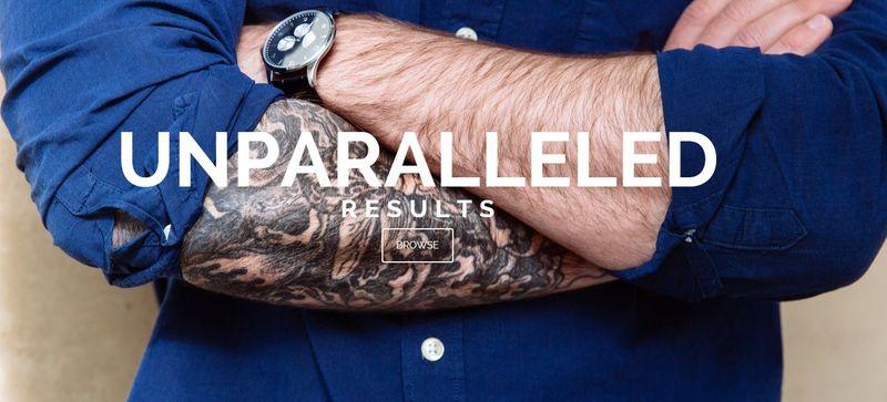 Seamless Tattoo Removals