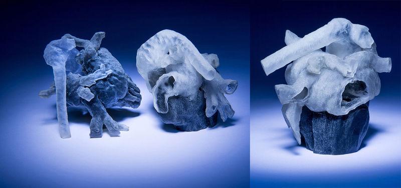 3D-Printed Heart Models