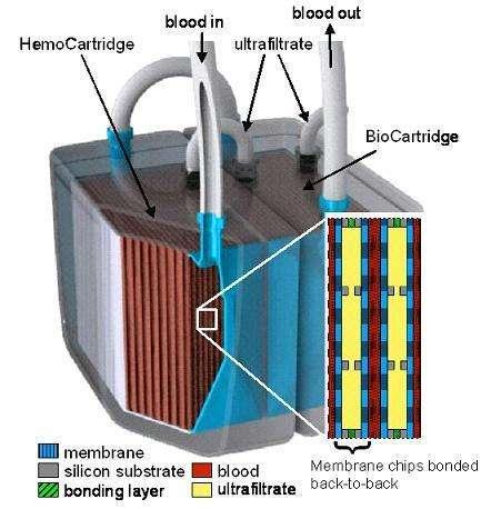 Engineered Organ Transplants
