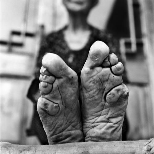 Bound Feet Photography
