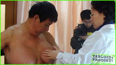 Male Breast Reductions