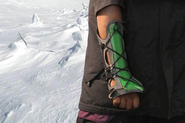 Snowboarding Wrist Casts