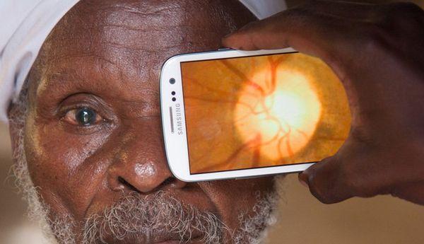 Mobile Eye Examinations