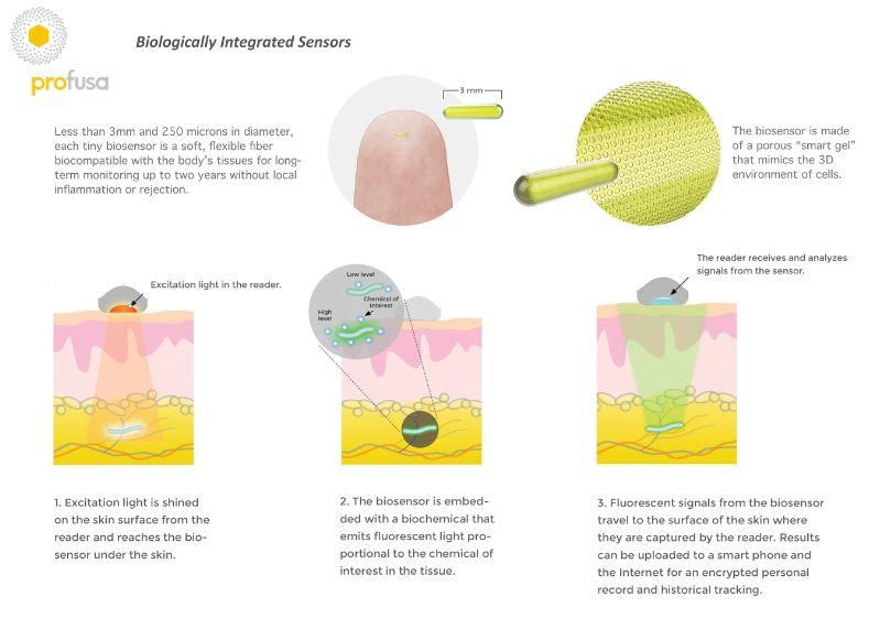 Disease-Monitoring Bio Sensors