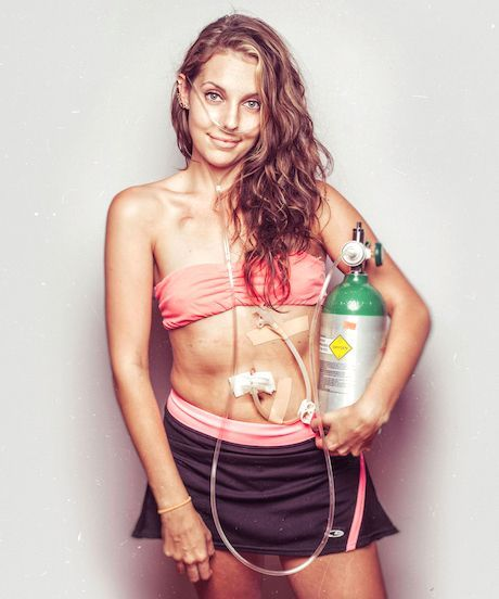 Chronic Disease Photography