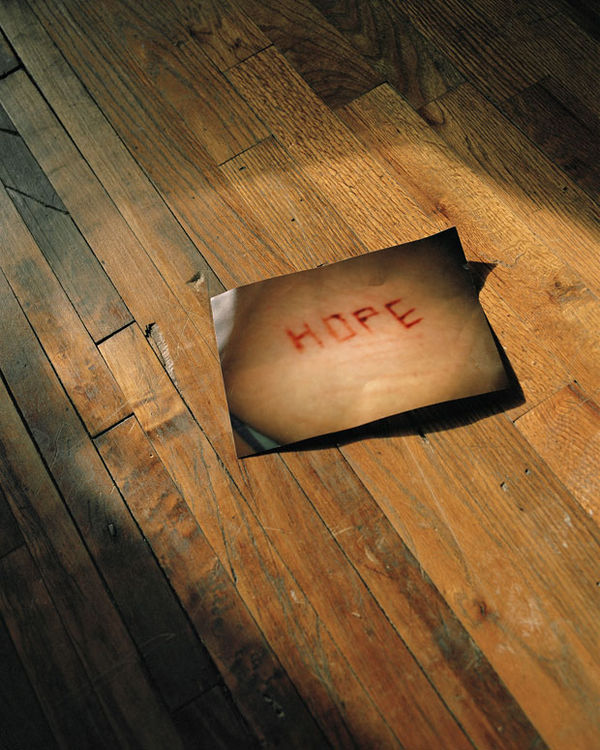 Honest Self-Mutilation Photography