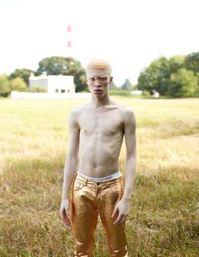 Eclectic Albino Fashion Photography
