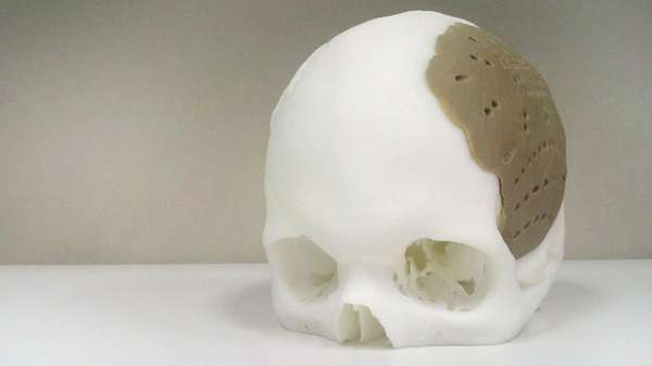 3D-Printed Skull Implants