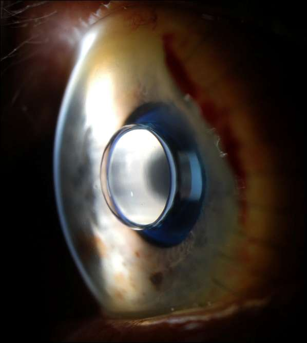 Corrective Ocular Implants (UPDATED)