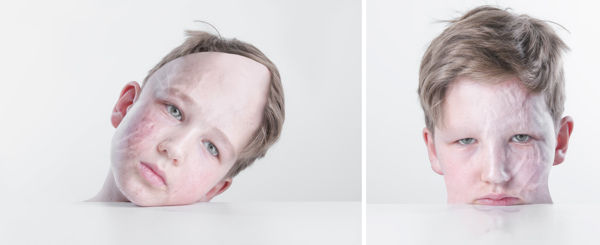 Scarred Child Portraits