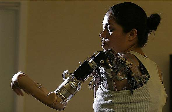Thought Controlled Bionic Arm