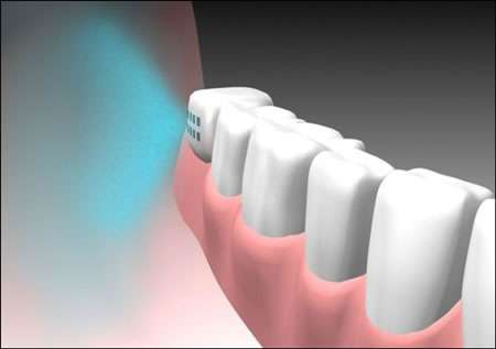 Take Your Medication Via Tooth Implant