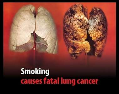 smoking can cause cancer