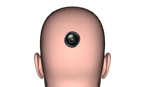 Camera Head Implants