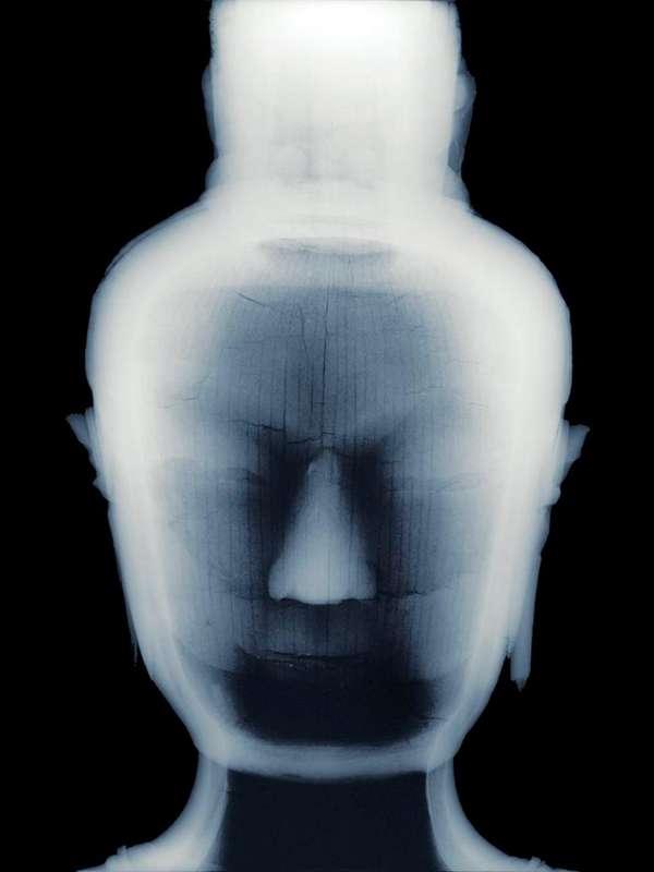 X-Ray Photographs