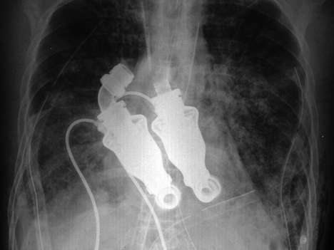No-Beat Heart Replacements - Continuous-Flow Pumps Act as Total Artificial Heart