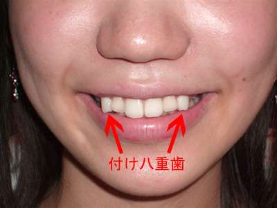 Reverse Orthodontia Procedures - Stick-On Crooked Teeth are Designed to Attract Timid Admirers