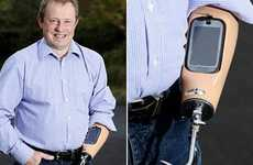 Synthetic Smartphone Limbs - Trevor Prideaux Upgrades His Prosthetic Arm with an Android