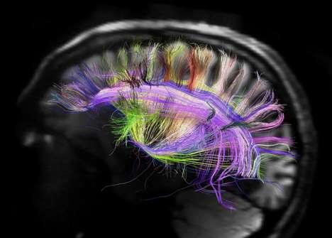 Nerve Fiber Captures