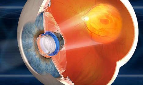 Magnifying Eye Surgeries