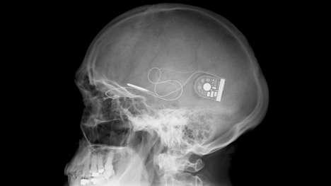 Sight-enabling Implants