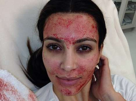 Blood-Recycling Beauty Facials - A New Beauty Procedure Involves Re-Injecting Blood into Faces