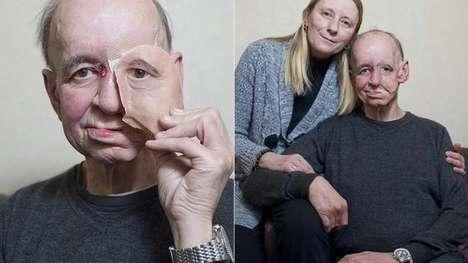 Printed Facial Prosthetics