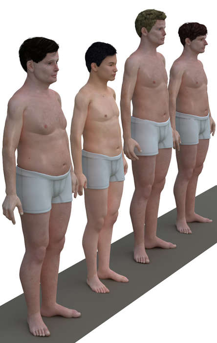 Comparative Obesity Imagery