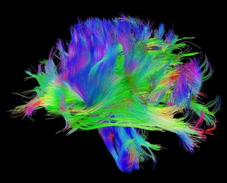 Psychedelic Brain Images - The Human Connectome Project Seeks to Better Understand the Human Brain