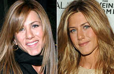 10 Celebrity Nose Jobs - From Jennifer Aniston to Blake Lively