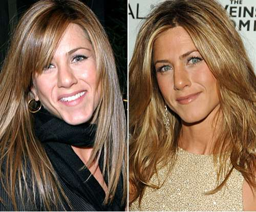 10 Celebrity Nose Jobs From Jennifer Aniston To Blake Lively