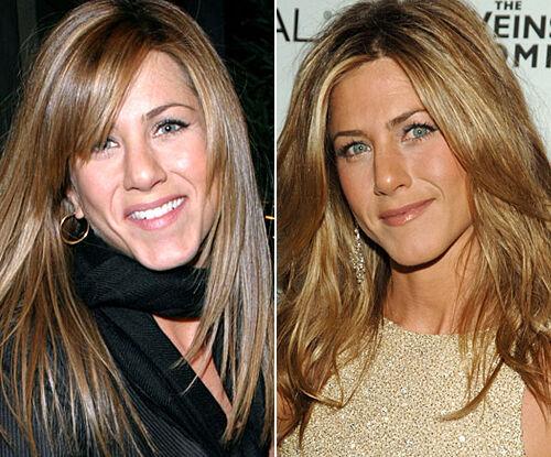 10 Celebrity Nose Jobs From Jennifer Aniston To Blake Lively