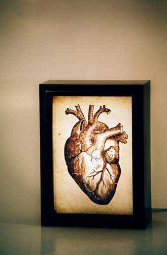 Anatomical Lightboxes