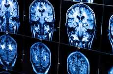 Alzheimers-Predicting Blood Tests - Georgetown Has Developed Blood Tests to Predict Alzheimers