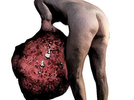 Man-Eating Cancer Sculptures