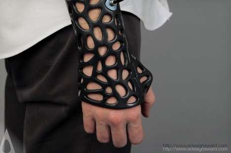 Ultrasound-Healing Medical Casts - Osteoid by Deniz Karasahin is a Stylish and Practical Alternative