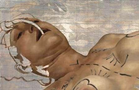 Plastic Surgery Paintings