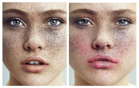 Freckle Faced Beauty Editorials