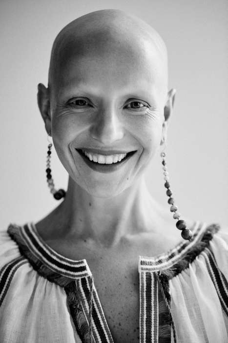 Bald Beauty Editorials - The Vogue 'Life After Hair Loss' Series Inspires Styles with Stories