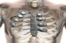 3D-Printed Chest Prosthetics - This Artificial Rib Cage is Made from Lightweight Titanium